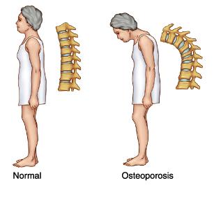 Osteoporosis Curvature